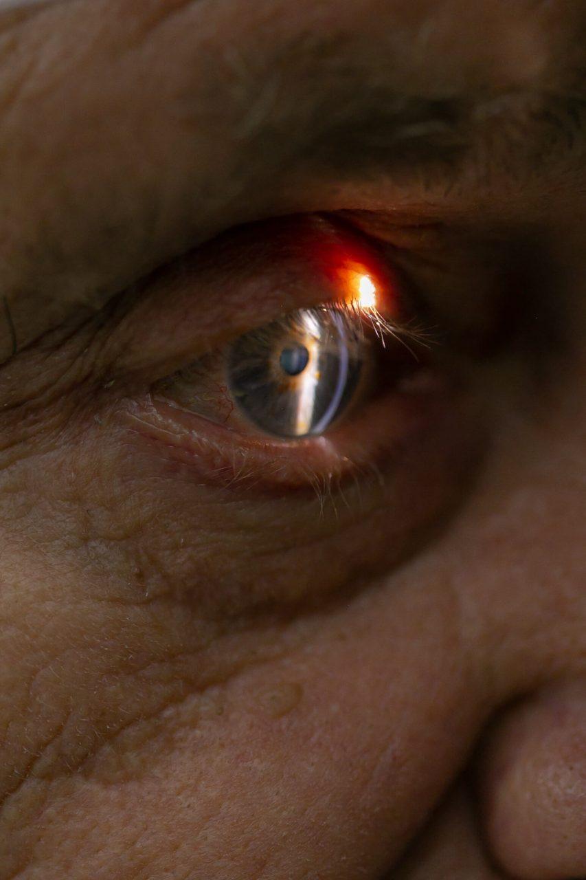Лікування та діагностика глаукоми: симптоми, причини та методи лікування